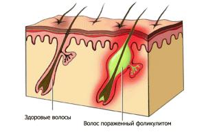 фоликулит