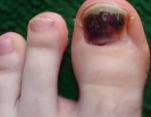 Эссенция уксуса от грибка ногтей
