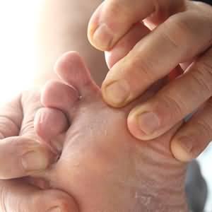 грибок у детей между пальцев