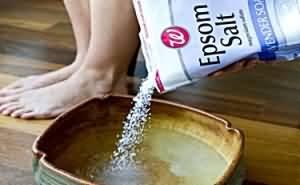 морская соль при грибке ногтей