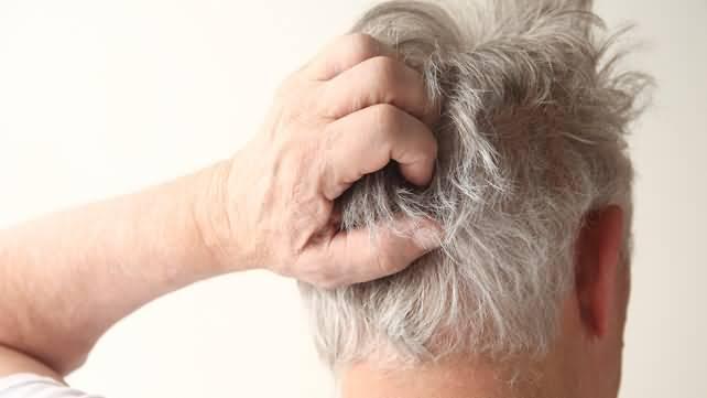 симптомы лишая на голове