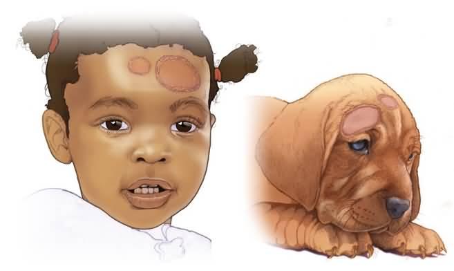 Микроспория у человека лечение: гладкой кожи, головы, у детей