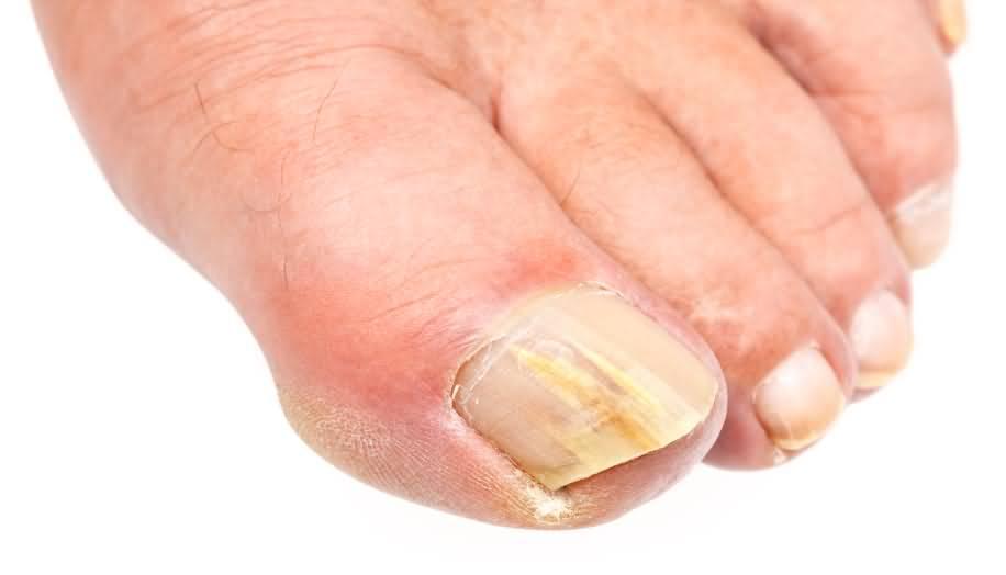 Экзодерил от грибка ногтей цена в саратове