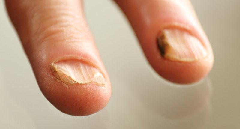грибок под ногтем