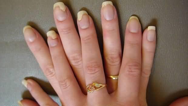 Народное средство от грибка между пальцами ног
