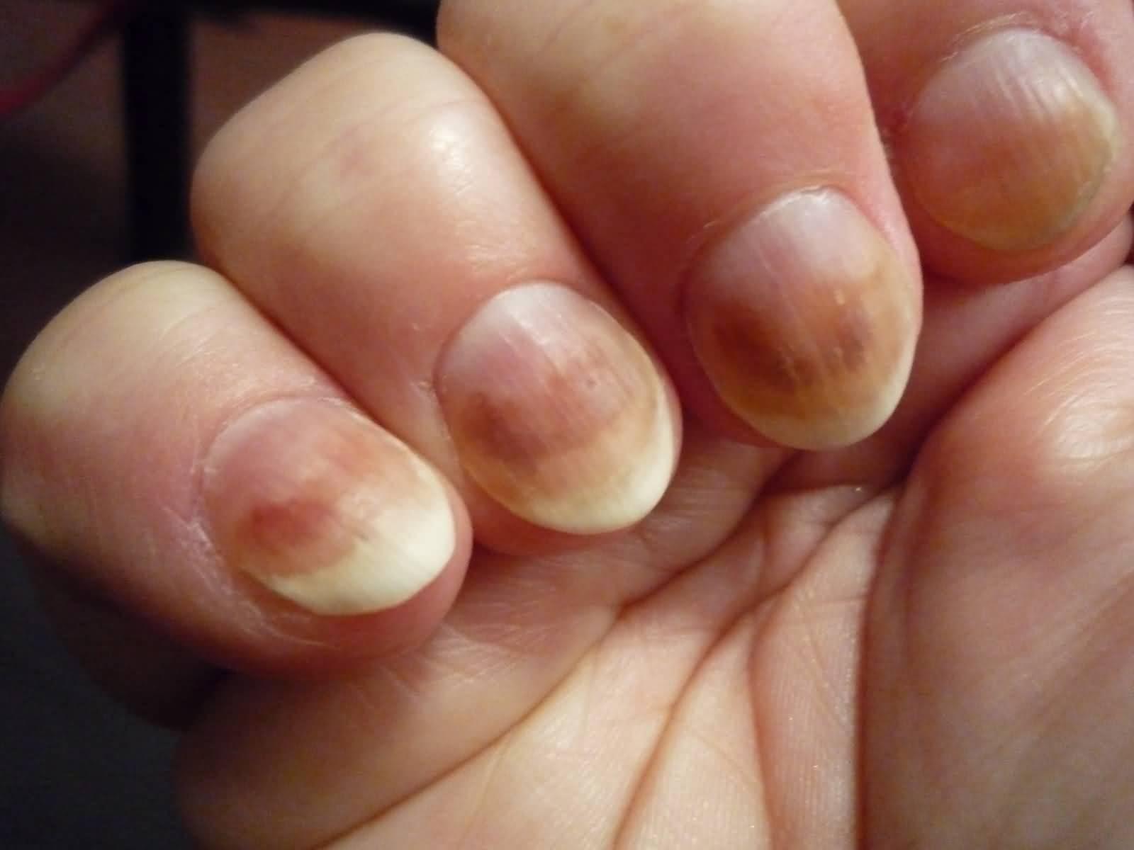Грибок на пальцах ног и как его лечить