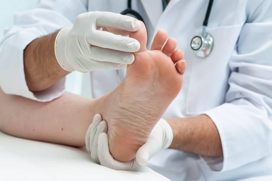 как снять ноготь пораженный грибком