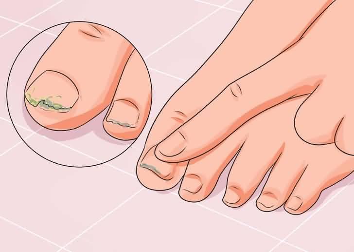 Глицерин для лечения грибка ногтей