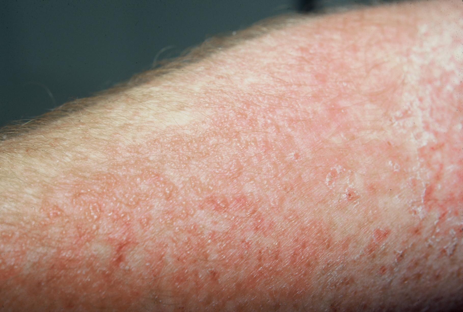 allergicheskiy-dermatit-2