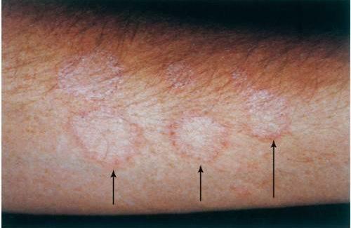 Микроспория у человека начальная стадия фото