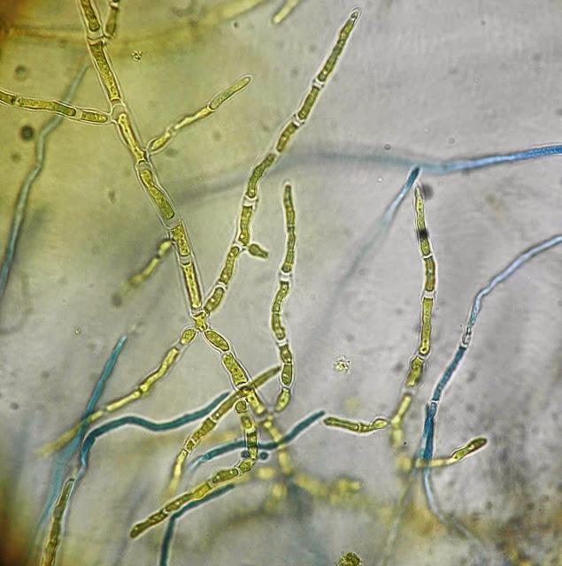 Бактерия Trichophyton interdigitale грибка ногтей
