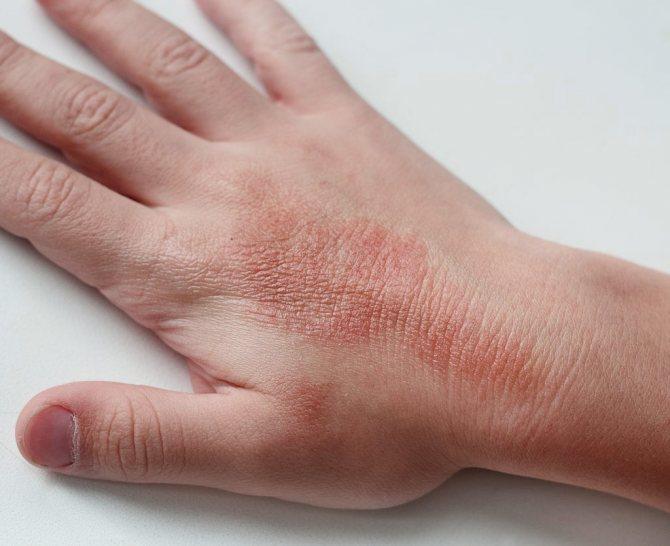 Внешний вид и проявление атопического дерматита